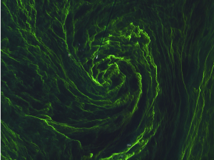 Eye of an algal storm. Copernicus Sentinel data (2015)/ESA